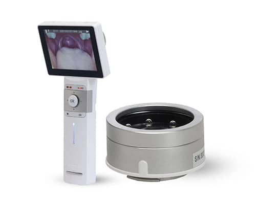 General viewing Lens